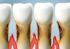 Burbank dentist    gum disease treatment   Dr. Ananian