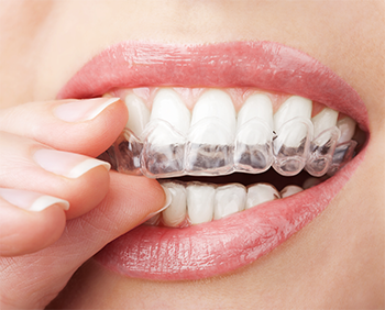 Burbank dentist | Invisalign clear braces | retainer | Dr Ananian